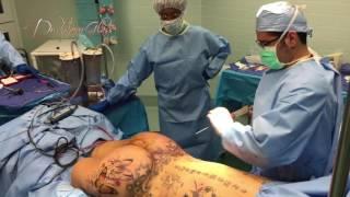 Brazilian butt lift surgery