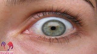 هل تعلم أن هناك 10% من الأشخاص قادرون على النوم وأعينهم مفتوحة - أغرب من الخيال