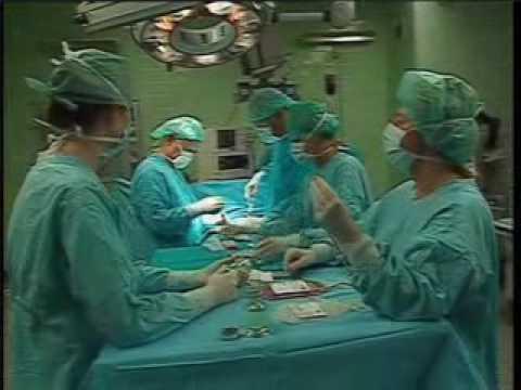 Przeszczep szpiku kostnego film z operacji