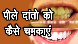 पीले दांतो को कैसे चमकाएं । How to brighten and whiten yellow teeth | Ms Pinky Madaan