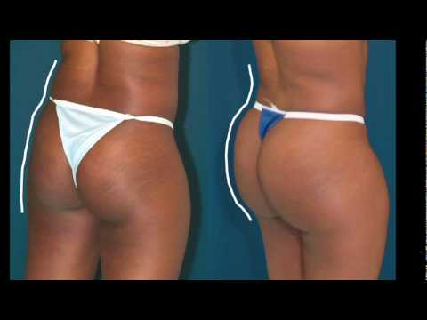 Brazilian Butt Lift What happens after losing weight