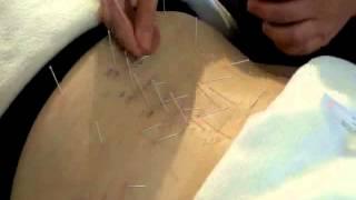 Acupuncture for Sciatica - www.taiji.net