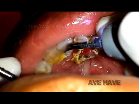 Plaque removed | Dental calculus | Long overdue plaque removal