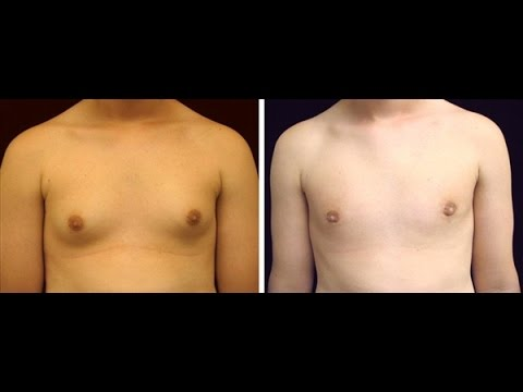 How to get rid of gynecomastia during puberty in boys and girls