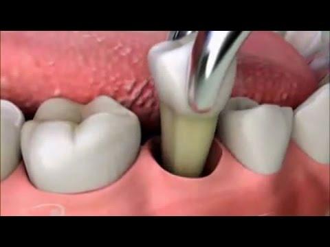 После удаления зуба черное внутри 54