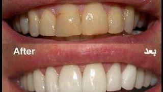 الوصفة السحرية لتبيض الاسنان (خلطة طبيعية)