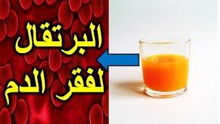 هل تعلم لماذا على مرضى فقر الدم الأنيميا نقص الحديد في الدم شرب عصير البرتقال, علاج فقرالدم