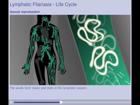 Lymphatic Filariasis Elephantiasis Life Cycle