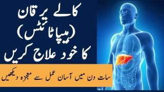 Kala Yarqaan K Liye Wazifa | Wazifa For Hepatitis C | Kalay Yarqan Ka Ilaj | The Urdu Teacher