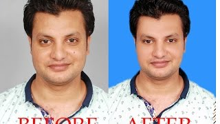 How To Clean Face Adobe Photoshop 7 0 In Urdu&Hindi