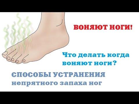 Воняют ноги в кроссовках что делать