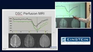 Introducing MRI: Perfusion Imaging (53 of 56)