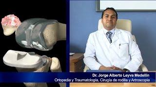 """Prótesis De Rodilla Navegada """"Dr. Jorge A. Leyva Medellín"""""""