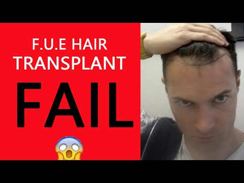 My FUE Hair Transplant Failed