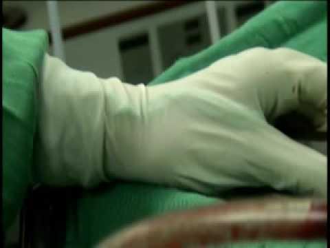 cirugia endoscopica de evacuacion de hematoma epidural