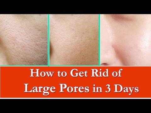खुले रोम छिद्र से कैसे छुटकारा पाये - Get Rid of Large Pores in 3 Days - Get Smooth & Tighter Skin