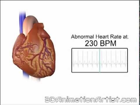 Normal Vs Accelerated Heart Rate