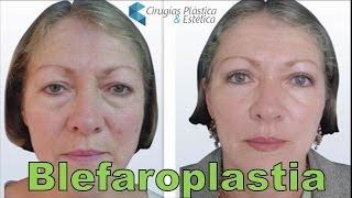 Blefaroplastia o Cirugia de Parpados con Fotos de Antes y Despues   Cirugia Plastica Bogota