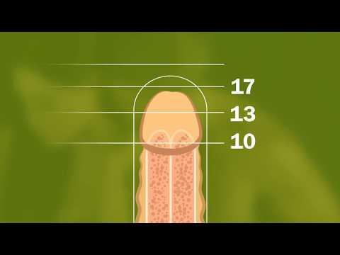 Xxx Mp4 Ein Größerer Penis In Umfang Und Länge 3gp Sex