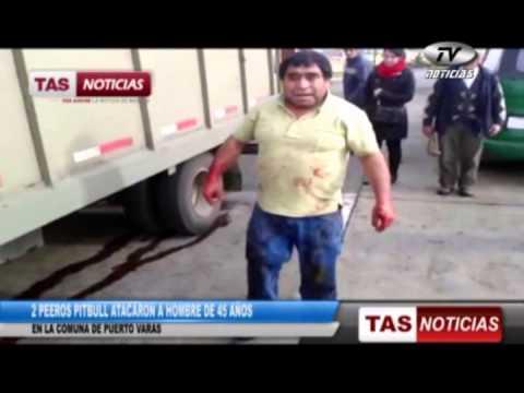 2 perros pitbull atacan a hombre en Puero Varas 12 07 2013