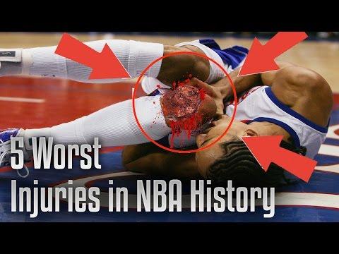 TOP 5 WORST NBA INJURIES EVER