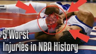 TOP 5 WORST NBA INJURIES EVER
