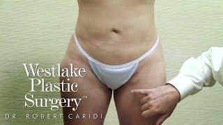 Best Liposuction Results, Post Liposuction Rolling - Dr. Caridi - Austin, TX Plastic Surgeon