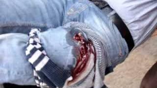 2011-02-25 A MAN HIT IN HIS LEG سوق الجمعة شاب مضروب في رجله