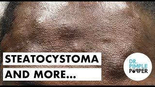 Forehead & More, Steatocystomas