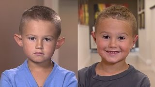 Parents Allow 6-Year-Old Boy with Big Ears to Get Plastic Surgery