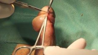 Fimosi Prepuziale Circoncisione Dr. Diego Pozza