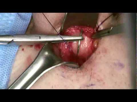 Minimally Invasive Penile Implant Surgery with AMS 700 series Penile Prosthesis
