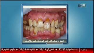 جراحة تجميل الأسنان المناسبة لكل حالة مع د.شادى على حسين