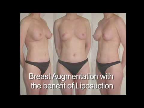 Fat Grafting Fat Transfer Breast Augmentation & Mastectomy Reconstruction Miami Breast Center