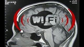 انظر ماذا يفعل الواي فاي والهواتف الخلوية والأيباد بدماغ البشر.. الأمر خطير !