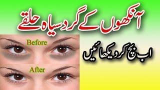 Aankhon Ke Gird Siyah Halkon Ka Ilaj -  How To Remove Under Eye Dark Circels in Urdu/ Hindi
