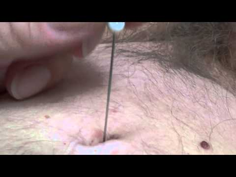 Xxx Mp4 New Navel Torture With Needle HRES Also 3gp Sex