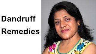 Dandruff Remedies : 3 Home Remedies For Dandruff - How To Get Rid Of Dandruff Naturally