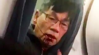 United Airlines Dr David Dao Reveals Horrific Injuries & Lawsuit