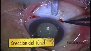 Cirugía de catarata SICS paso a paso