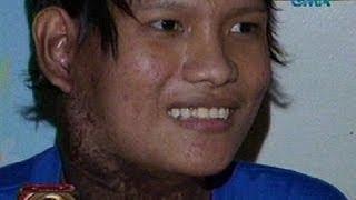 24 Oras: Binatilyong may cancer sa lalamunan, hinatiran ng Pamasko ng Kapuso Reporters