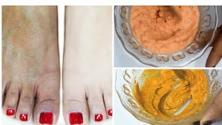 রোদে পোড়া কালো ত্বক সুন্দর করুন মাত্র ৩ দিনে II Remove sun tan in 3 day