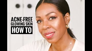 How To Get Acne-Free, Glowing Skin: A Step-By-Step Process | Style Domination By Dominique Baker