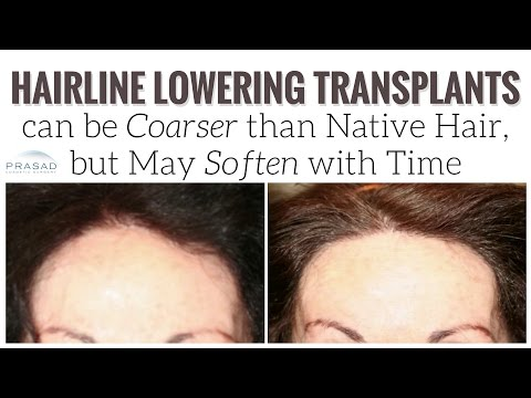 Why Transplanted Hair at the Hairline May Grow Thicker than Native Scalp Hair, but Soften with Time