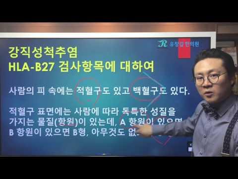 강직성척추염(Ankylosing Spondylitis)의 검사항목 HLA-B27