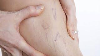 هل تعاني من الدوالي و بروز العروق و مشكل في الدورة الدموية.. إليك العلاج الفعال !