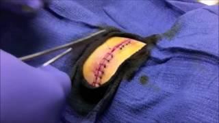 Animal Attack Dog Bite! Victim's ER Procedure