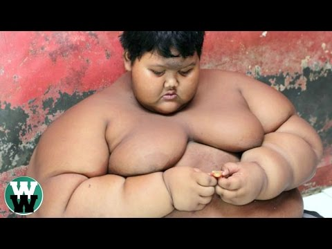 10 Obese Children Who Can't Stop