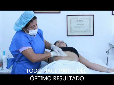POST-OPERATORIO LIPOESCULTURA.wmv