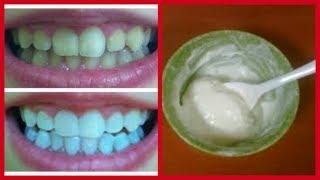 صدق او لا تصدق تبيض الاسنان خلال 3 دقائق وازاله الاصفرار بمكونين فقط مضمونة ومجربة